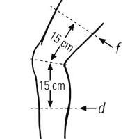 Maßnahme am Knie