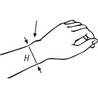Maßnahme am Handgelenk